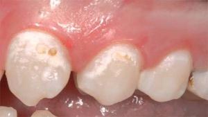 белые пятна на зубах что это