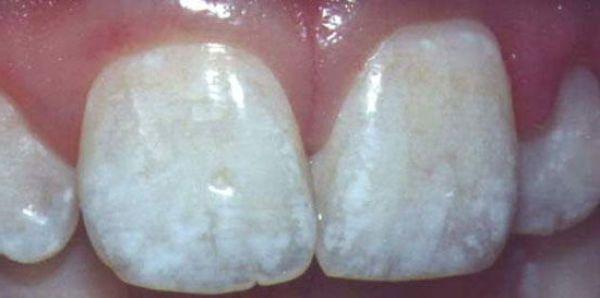 на зубах у человека появились белые пятна