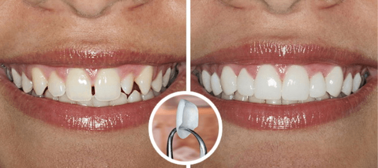 люминиры их фото до и после и отзывы клиентов стоматологий