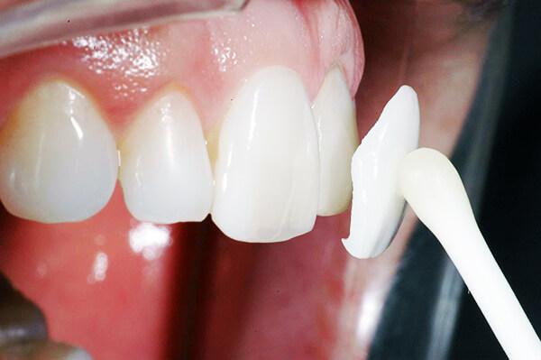 установка люминиров в кабинете стоматолога