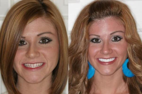 установить на зубной ряд люминиры