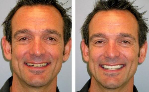 решение проблем с кривыми зубами