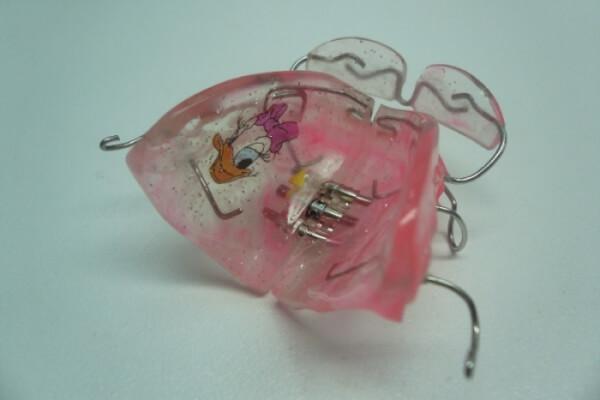 как выглядят пластины для выравнивания зубов