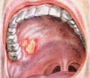 язва во рту лечение в домашних условиях