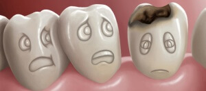 кариес зубов человека фото четырех стадий