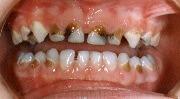 кариес зубов фото стадии