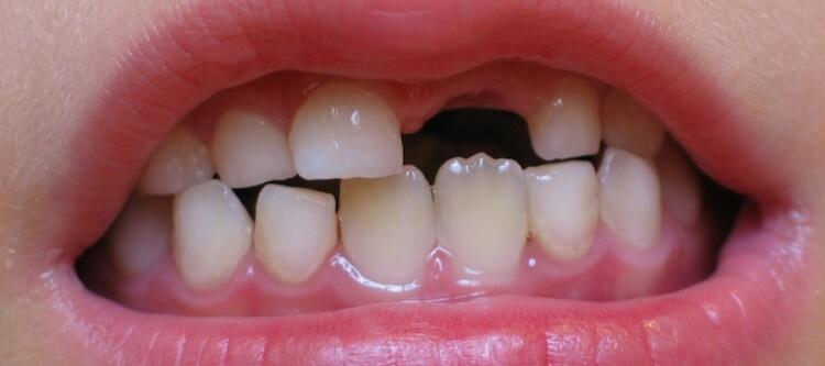 молочные зубы когда выпадают сроки и порядок