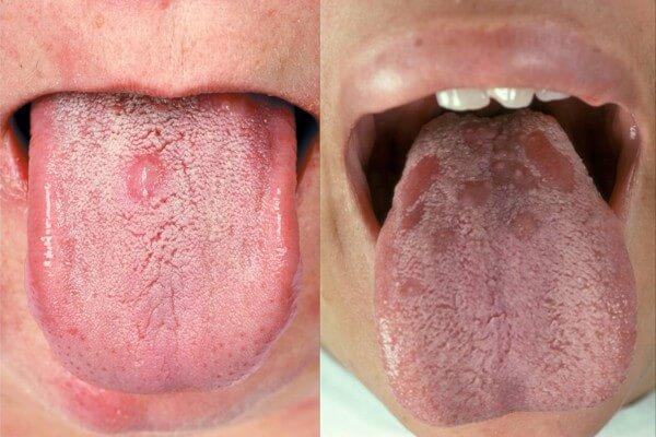 язык с пятнами при сифилисе