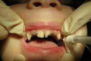 крошатся молочные зубы что делать