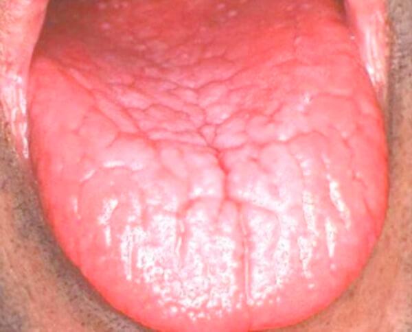 как лечить глоссит языка