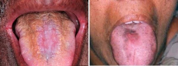 кандидозный глоссит языка лечение и фото