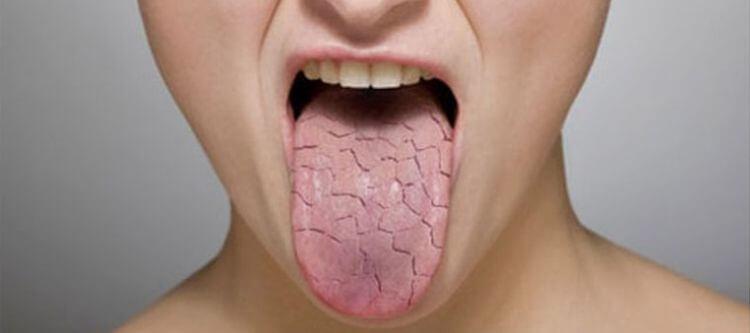 трещины на языке у человека причины и лечение