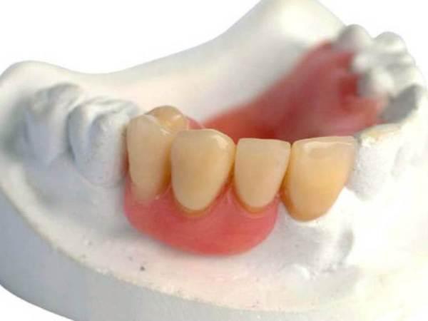 Частичные покрывные зубные протезы
