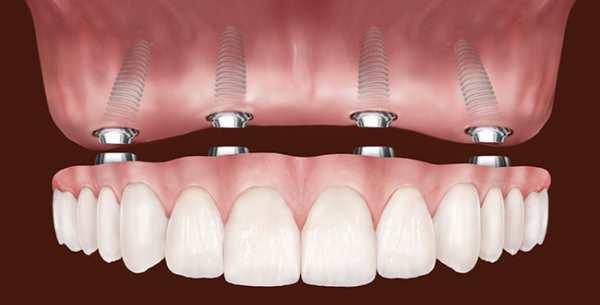покрывной зубной протез на имплантатах