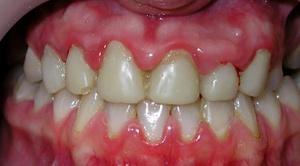гингивит способствует расшатыванию зубов