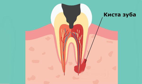 как устранить подвижность зубов