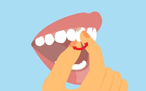 что делать тому у кого шатаются передние зубы
