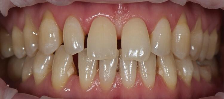 На фото показано заболевание рецессия десны, когда десна отошла от зуба