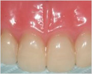 отзывы про покрывной зубной протез