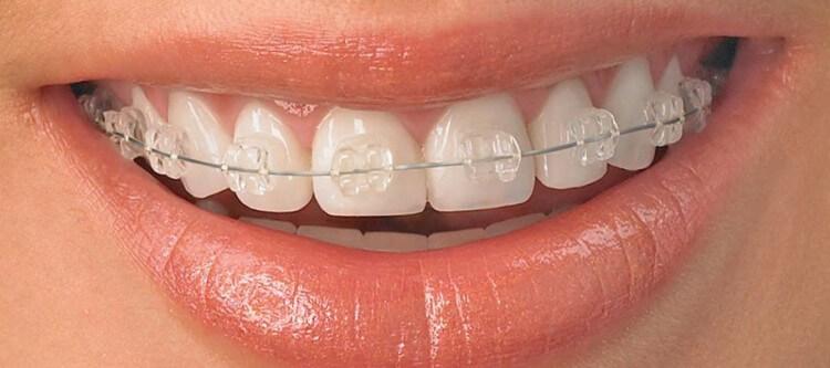 цена на сапфировые брекеты в стоматологии