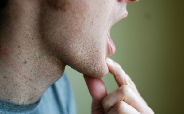 лечение щелканья челюсти