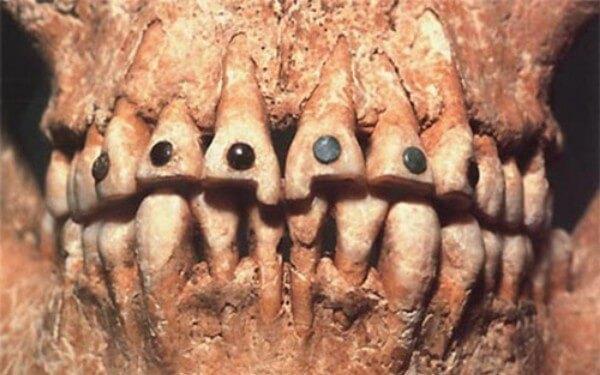 стразы на зубах как делают