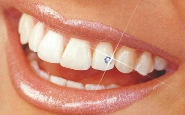правила ношения страз на зубах