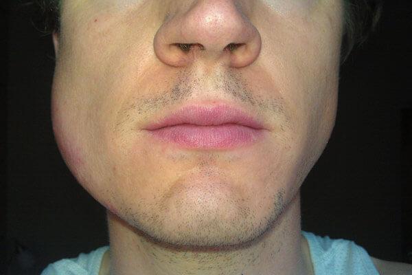 опухоль на щеке у мужчины