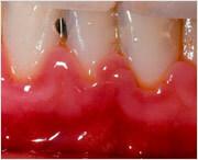 Чем лечить, если вокруг зуба воспалилась десна