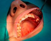 как приживаются имплантаты верхних и нижних челюстей