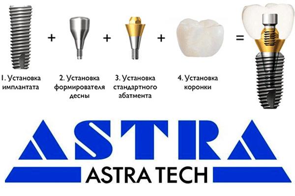 зубные импланты производства швеция