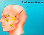 симптомы воспаления тройного нерва