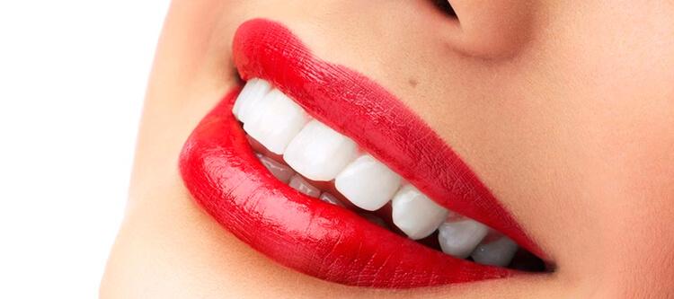 сколько стоят люминиры — цена за 1 зуб