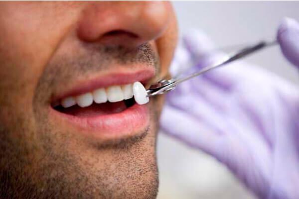 крепление накладок на зубы