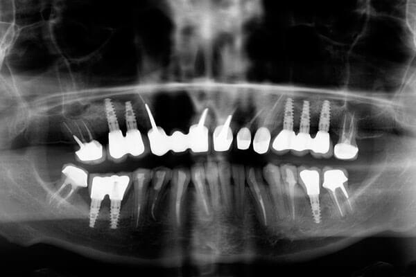рентген после имплантации