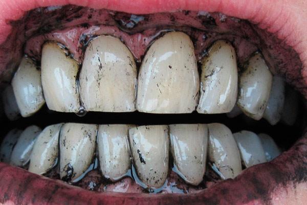 как сделать светлее желтые зубы без вреда за 1 день народными средствами