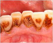 какие причины образования зубного камня существуют
