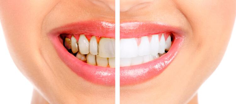 Зубной камень причины