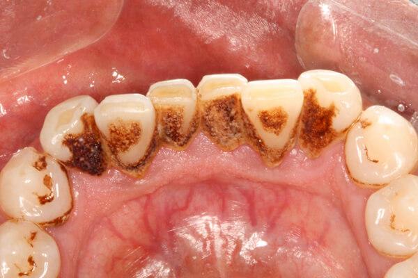 твердые отложения: зубной камень