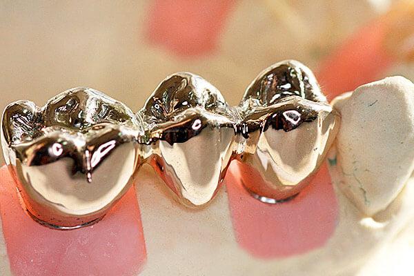 три искусственных зуба