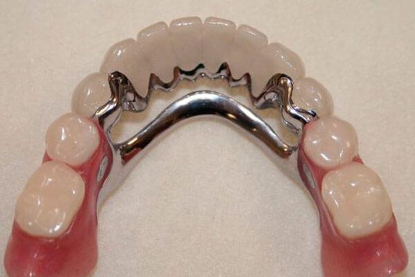 фото: для нижних зубов