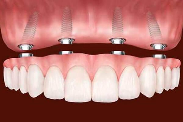 вставная челюсть на имплантах