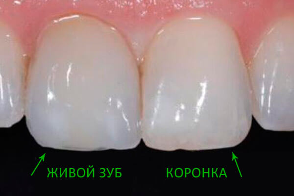 Беременна и отбеливание зубов