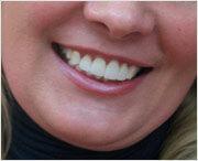 как создать безупречный зубной ряд