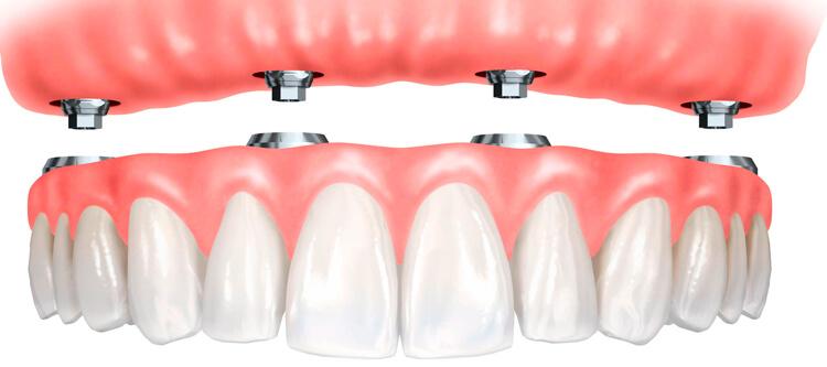 Протезирование зубов при полном отсутствии: какое выбрать