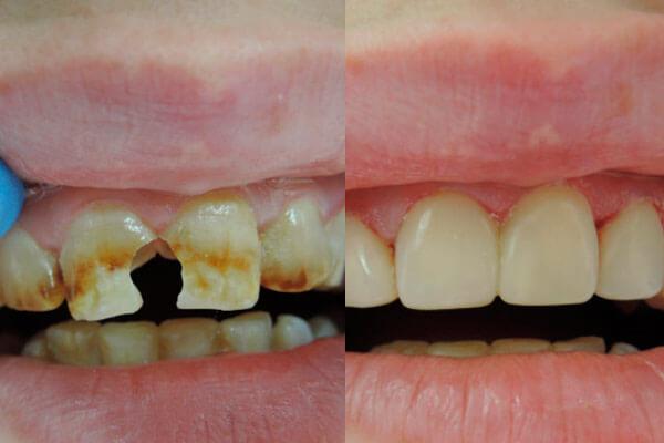 композитные виниры на зубы