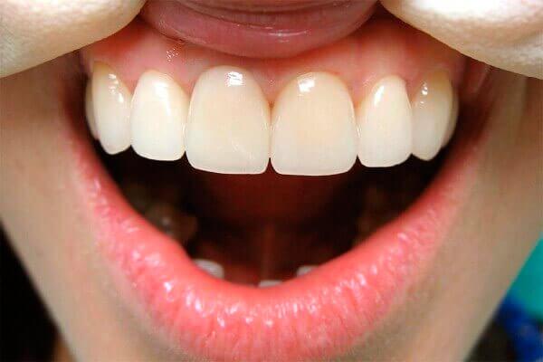 восстановление зубов коронками из металлокерамики