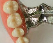 какая стоматология может срочно починить вставные зубы