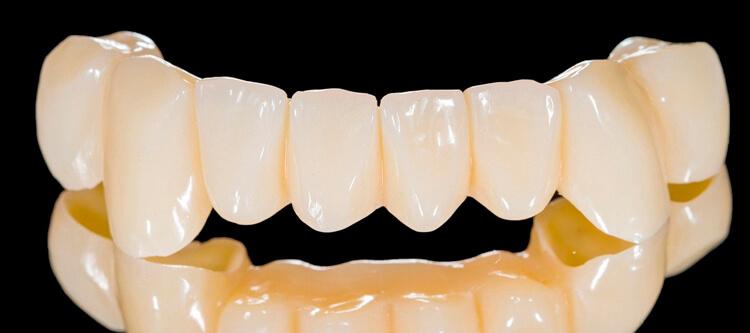 отзывы пациентов про пластмассовые коронки на передние зубы