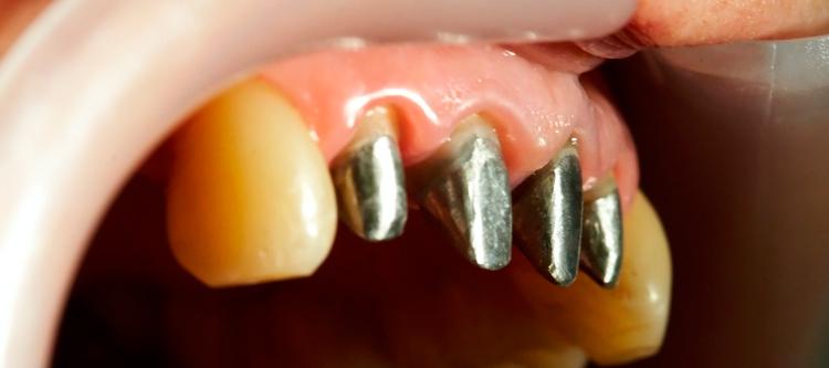 вкладка в зуб под коронку фото и описание